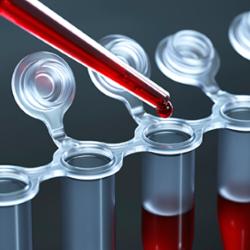 test-bowel-cancer.png - 118.29 KB